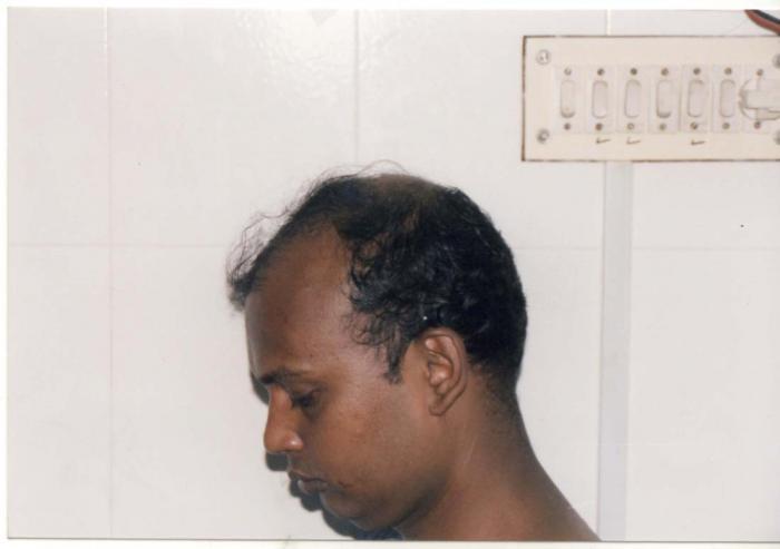 Hair Grafting :